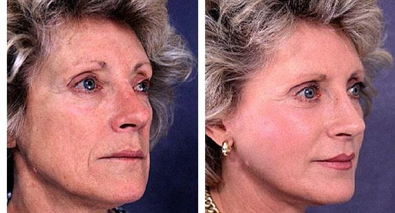 cosmetic surgeon double bay